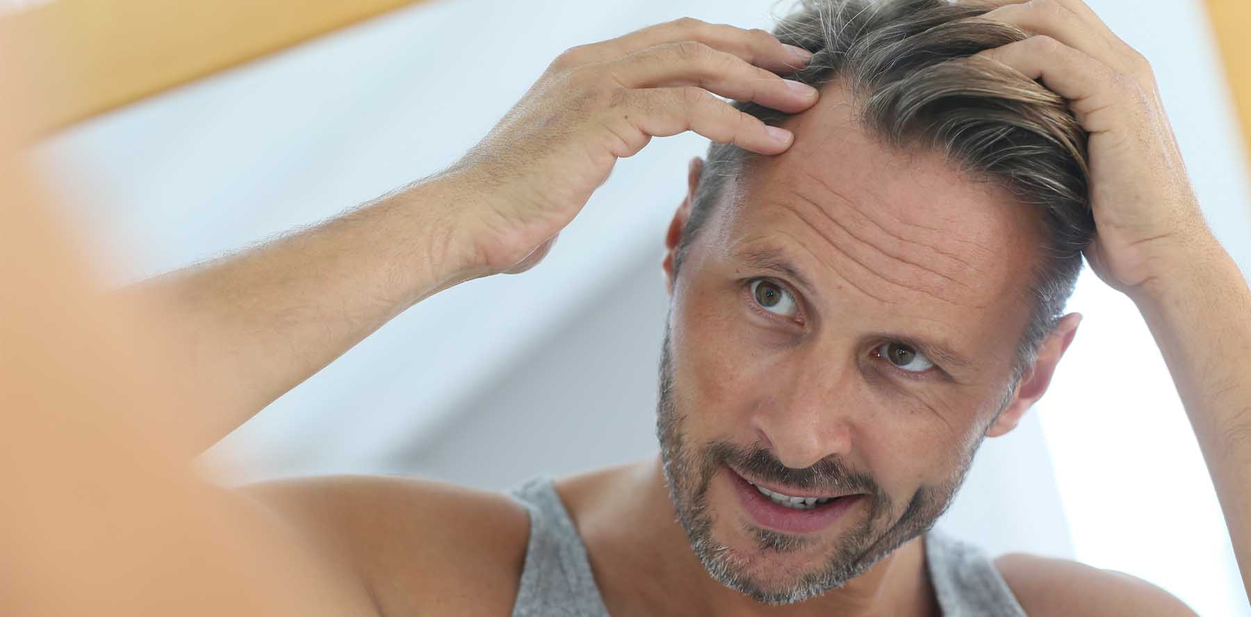 Receding Hairline: How To Reclaim Your Hair