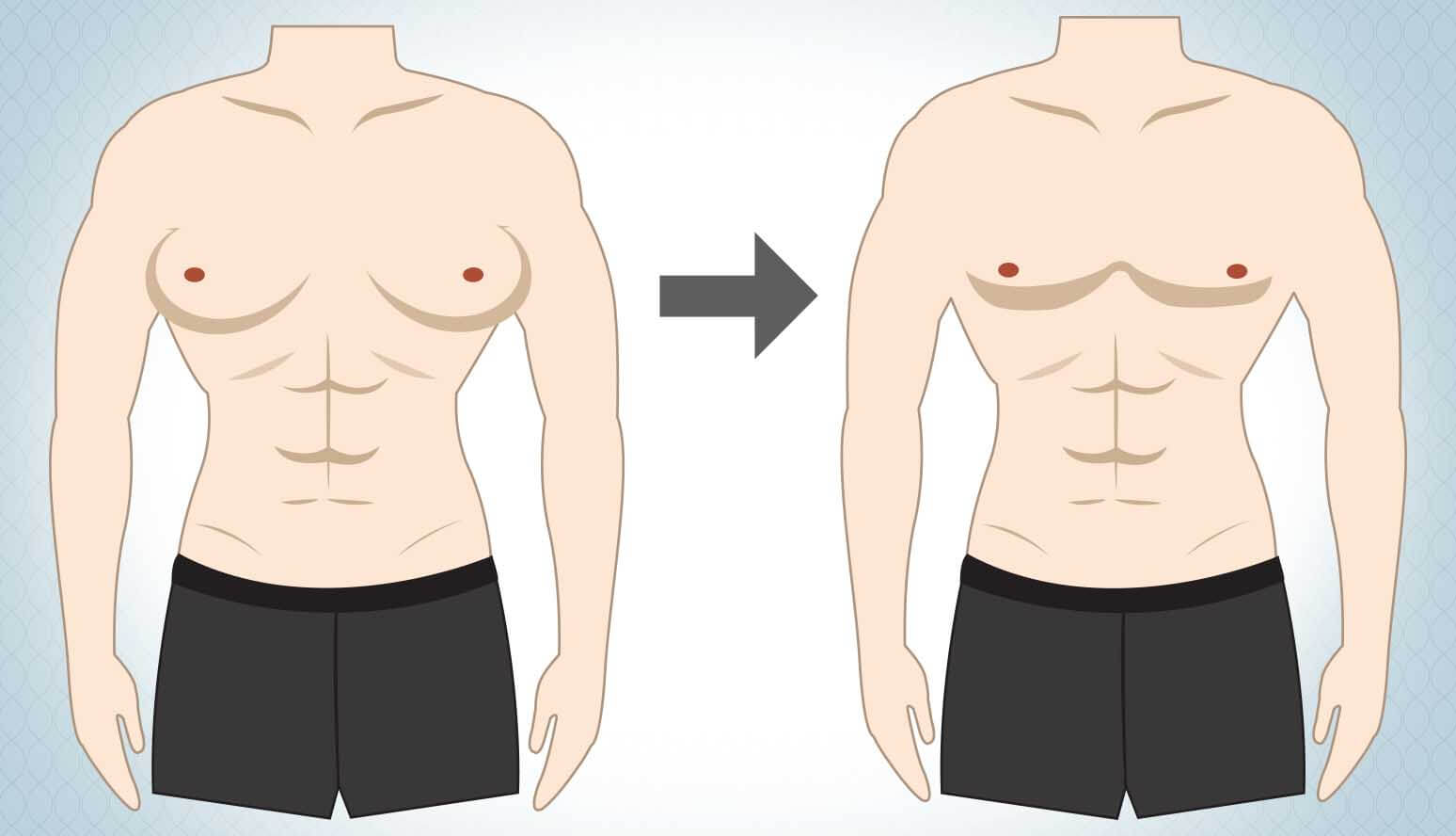 Gynecomastia Surgery: the only treatment for Male Breast Enlargement