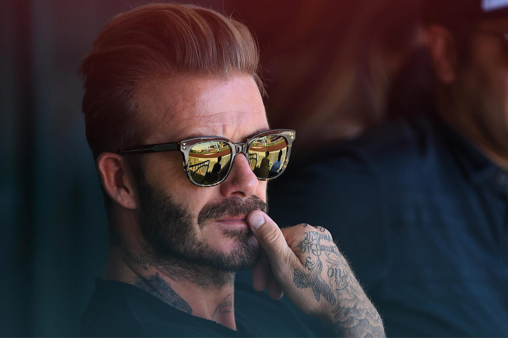 David Beckham Hair Transplant Speculations & 422 predictions