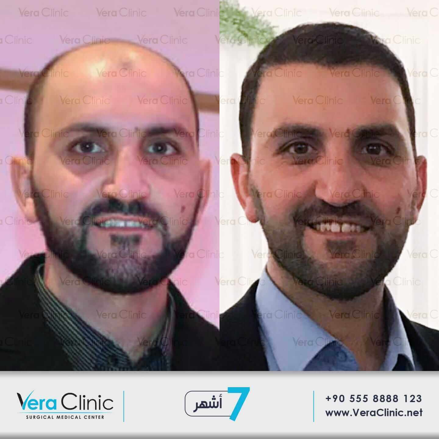 hair transplant before and after 7