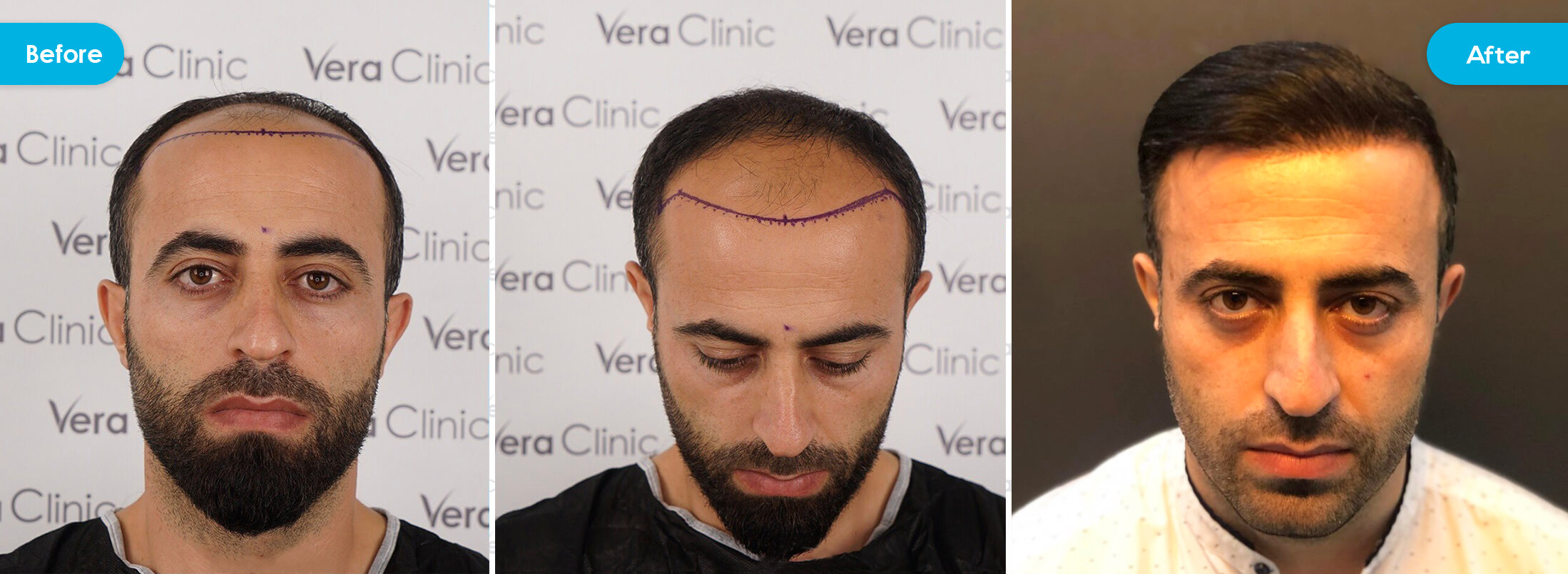 hair transplant turkey before & after